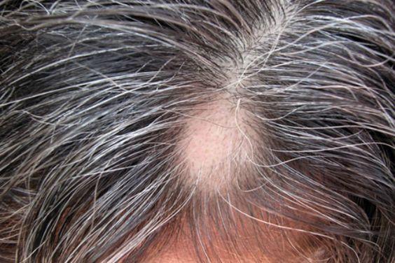 Vypadávajú vám vlasy? Odborníci na trichológiu by vám mohli pomôcť